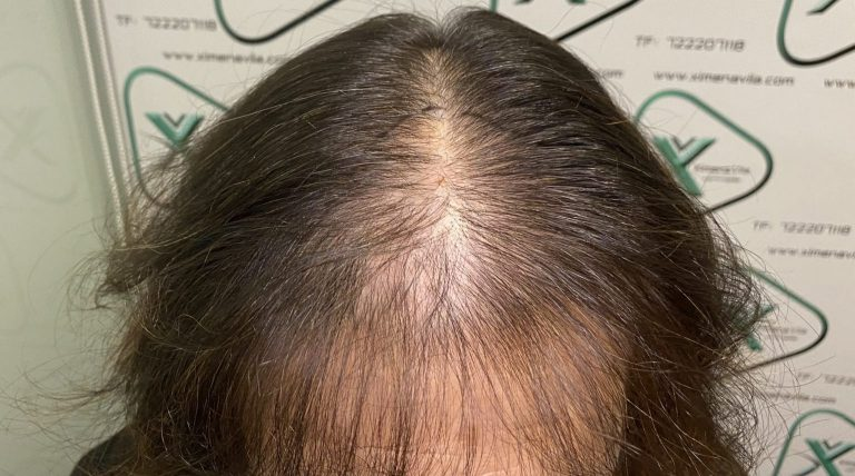 caída cabello mujeres