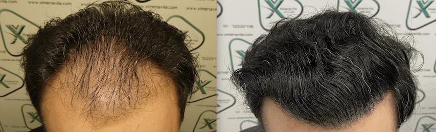 saw palmetto alopecia